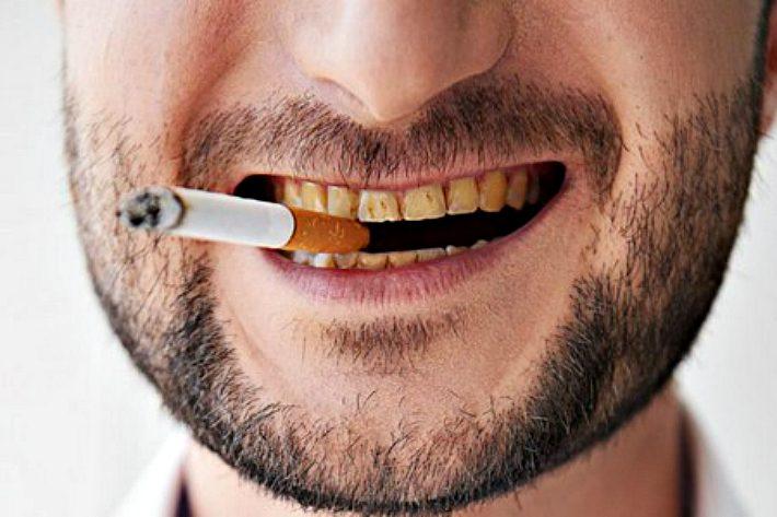 курение влияет на цвет зубов